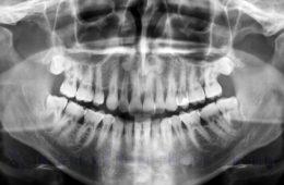 Качественная рентгеновская диагностика зуба