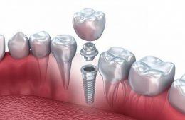 Имплантация зубов на высшем уровне в клинике Имплант Сити