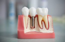 Современное протезирование зубов: виды и особенности